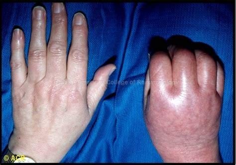 Rheum2learn Regional Musculoskeletal Disorders