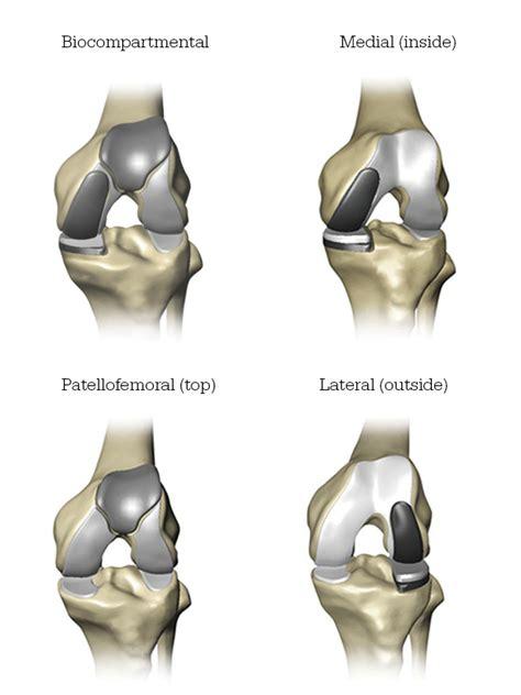 Mako Partial Knee Replacement - Muskegon Surgery Center