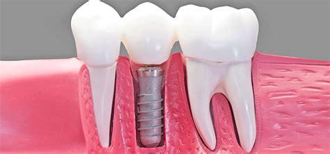 dental implant work northwood dental associates