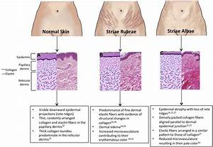 Therapeutic Targets In The Management Of Striae Distensae