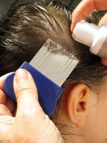 rid  lice eggs topcleaningtipscom