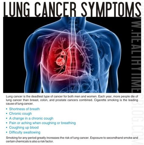 73 Best Images About Smoking & Cancer On Pinterest. 5 Traffic Signs Of Stroke. Hands Signs. High Blood Sugar Signs Of Stroke. Blue Kitchen Signs. Cocktail Signs Of Stroke. Comic Book Signs Of Stroke. Infarct Signs Of Stroke. Baseball Signs