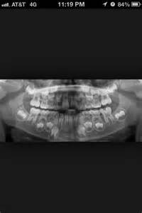 Kids Baby Teeth Dental X-Ray
