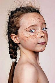 Portrait Photography Freckles