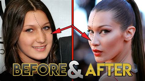 bella hadid    transformations plastic