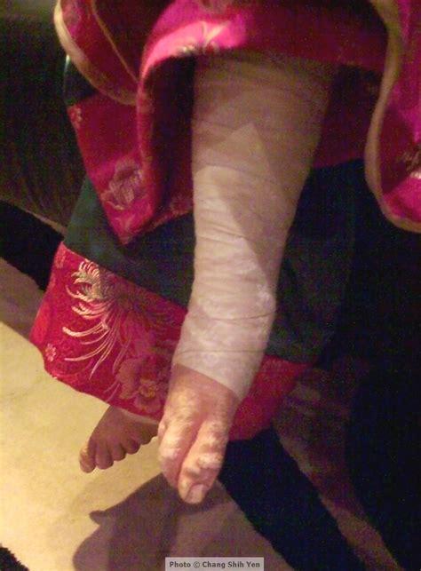 Chinese Foot Binding And Lotus Shoes Shihyenshoes