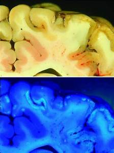 Overview Of Polioencephalomalacia - Nervous System