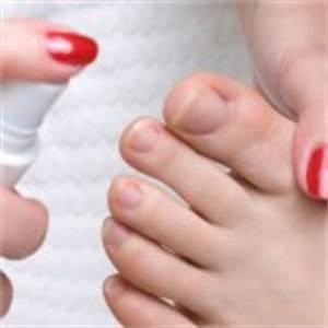 Как убрать грибок на ногтях ног быстро