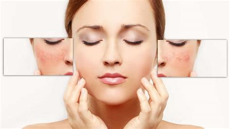 How To Get Rid Of Facial Redness