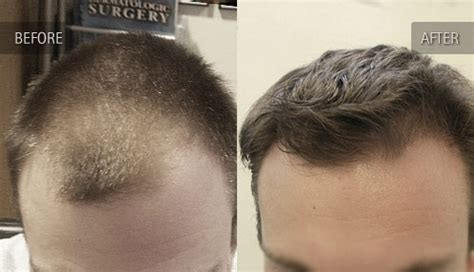 hair loss front of head before and after photos of hair transplant clients orlando hair transplant clinic