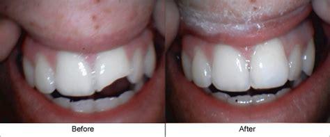 defines  cosmetic dentist carlsbads