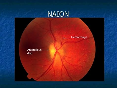 Clinical Approach To Optic Neuritis