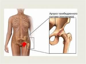 Артроз тазобедренного сустава 1 степени лечение по бубновскому