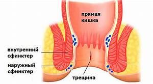 Мазь от геморроя рецепт стрептоцид