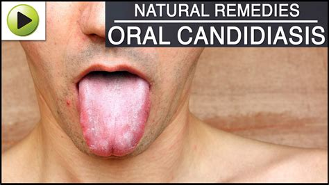 Oral Candidiasis Natural Ayurvedic Home Remedies Youtube