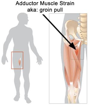 Adductor Strain  Groin Pull  Muscle Pain, Exercises And