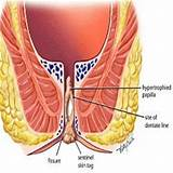 Ayurvedic treatment for anal fissures