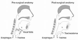 Anatomy Of A Person With Intact Larynx  Left   Anatomy After Total