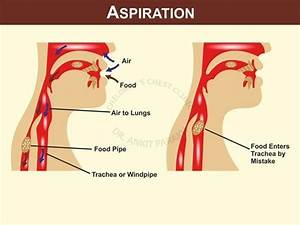 Studies For Evaluation Of Aspiration