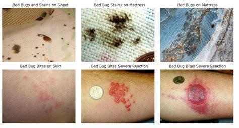guide    kill bedbugs step  step treatment tips