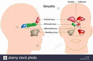 Sinuses Of Human Head And Sinusitis Stock Photo