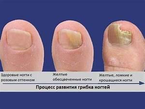Зеленоград лечение грибка ногтей лазером
