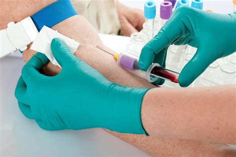 blood test  replace invasive biopsy   patients
