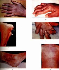 Мазь для суставов пальца руки