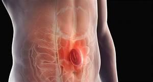 Visual Guide To Hernias