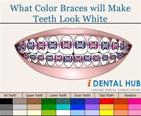 braces colors that make teeth look whiter when you decided to go for braces treatment then