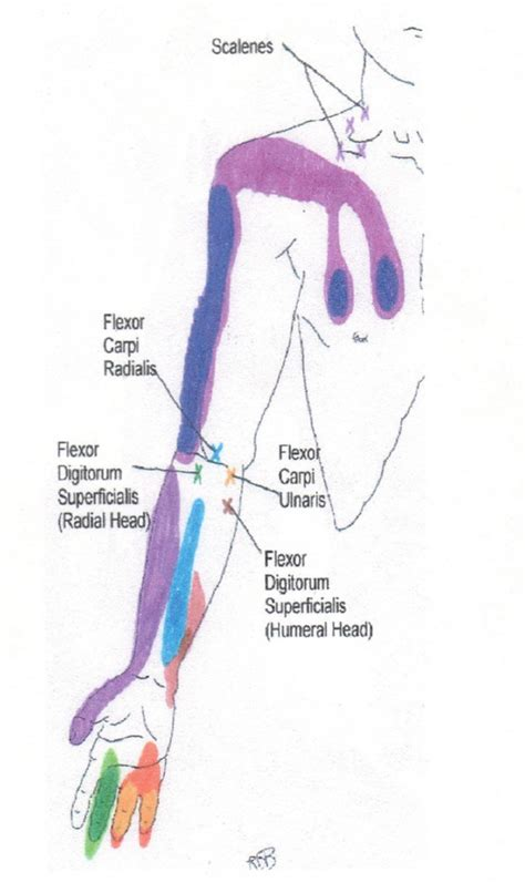 neck shoulder arm  hand trigger point chart