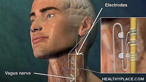 vagus nerve stimulation vns  treating depression