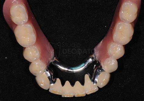 protesi dentaria parziale mobile