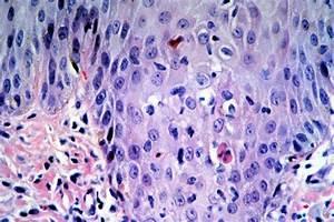 Organ Rejection Small Bowel Graft Versus Host Disease