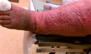 Chronic Venous Stasis Dermatitis Treatment