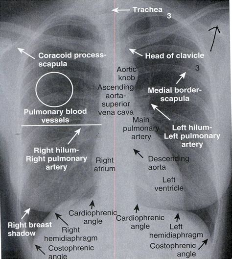 xray costophrenic angle aortic knob right left ct process mri sa scapula clavicle head trachea coracoid atrium week side ventricle