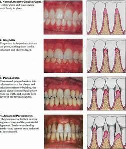 "Dental Problems & Their Solutions - Dr. Swarup's "" A Super ..."