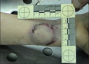 Photograph Of Bite Mark On Right Wrist With American Board