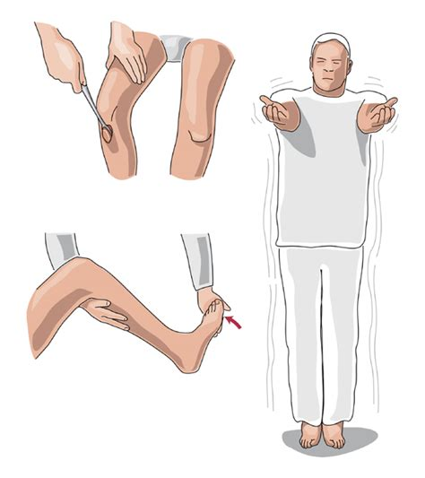 Symptoms Of Spinal Cord Compression. Hand Holding Signs. Crossed Aphasia Signs. June 21 Signs. Slow Signs. Hot Chocolate Signs Of Stroke. Png Transparent Signs Of Stroke. Sweet Signs. Tram Signs