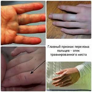 Что делать если болит сустав на руке большого пальца
