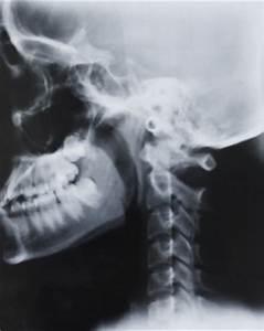 Skull Vectors Vector | Free Download