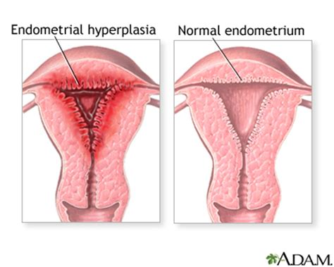 thick uterine lining shedding during period abnormal menstrual periods medlineplus