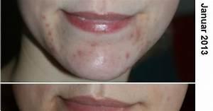 Große Poren Wangen : liplacquer meine pflegeroutine teil 1 kampf den pickeln ~ Yasmunasinghe.com Haus und Dekorationen