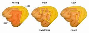 Why Deaf Have Enhanced Vision