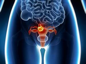 Brca1 Linked To Higher Risk For Aggressive Uterine Cancer