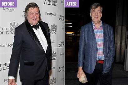 Stephen Fry Weight Loss Stone