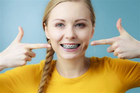 Individuals can also find the costs of braces. Dental Insurance & Braces - What You Need To Know   BRO News