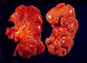 Pyelonephritis  Acute