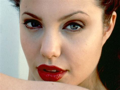 foto de The Aesthetic Doctor's Blog: Lip Enhancement with Fillers