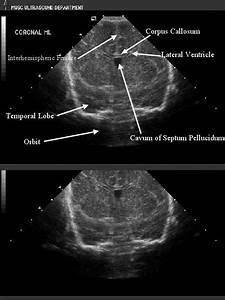 Diagram Of Brain Ventricles Ultrasound Pictures To Pin On